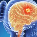 Faktor Penyebab, Gejala dan Pengobatan untuk Kanker Otak
